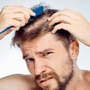 What Are Some Cost Friendly Hair Loss Treatment Options?